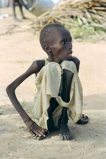 http://www.flatrock.org.nz/topics/odds_and_oddities/assets/starving-boy.jpg