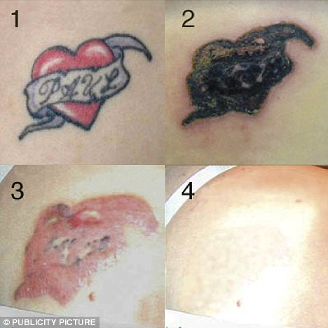 Unwanted Tattoos Can Be Removed by Cream Injected into Skin - without Pain